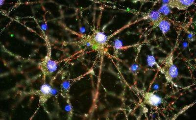 Болезнь альцгеймера грозит молодым - «наука»