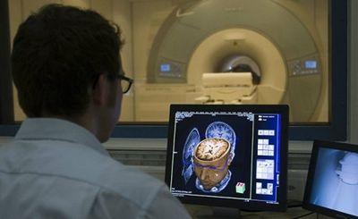 Болезнь альцгеймера может быть заразна - «наука»