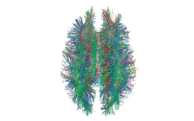 Ученые нашли способ обнаружить вич в мозге