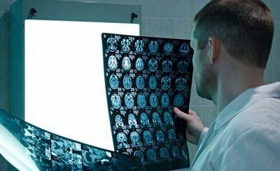 Ученые вскрыли «черный ящик» шизофрении - «наука»